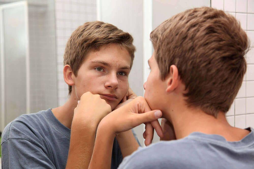 Causes of Teen Acne
