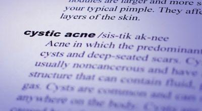Nodular and Cystic Acne